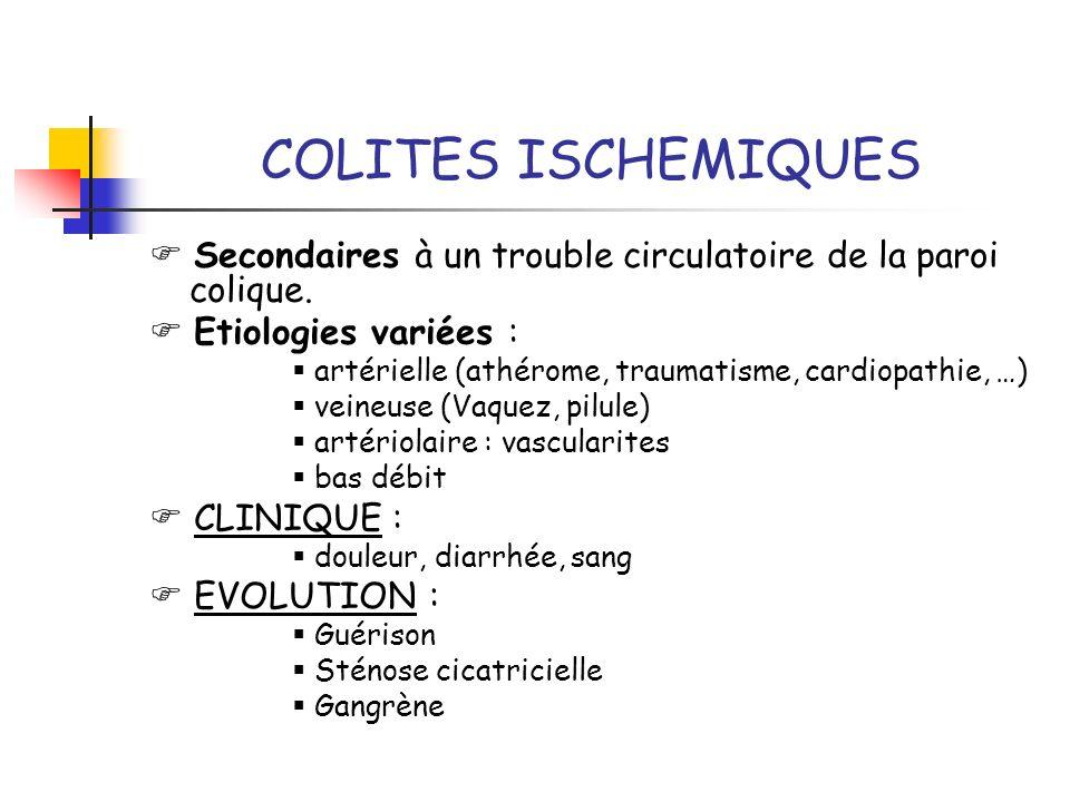 COLITES ISCHEMIQUES Secondaires à un trouble circulatoire de la paroi colique. Etiologies variées : artérielle (athérome, traumatisme, cardiopathie, …