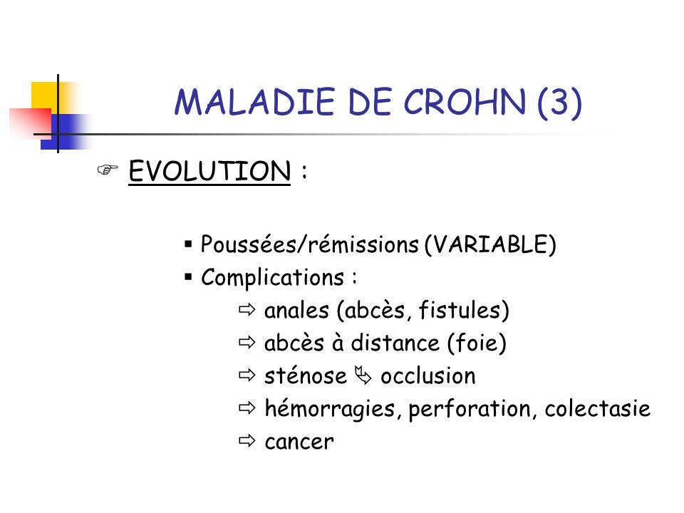 MALADIE DE CROHN (3) EVOLUTION : Poussées/rémissions (VARIABLE) Complications : anales (abcès, fistules) abcès à distance (foie) sténose occlusion hém