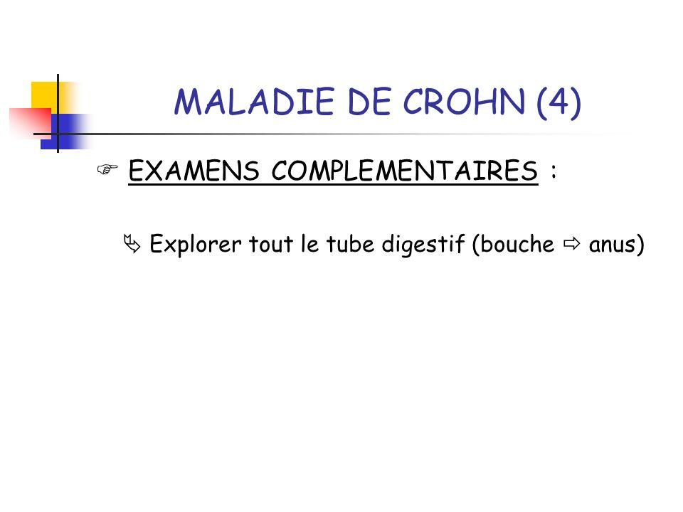 MALADIE DE CROHN (4) EXAMENS COMPLEMENTAIRES : Explorer tout le tube digestif (bouche anus)