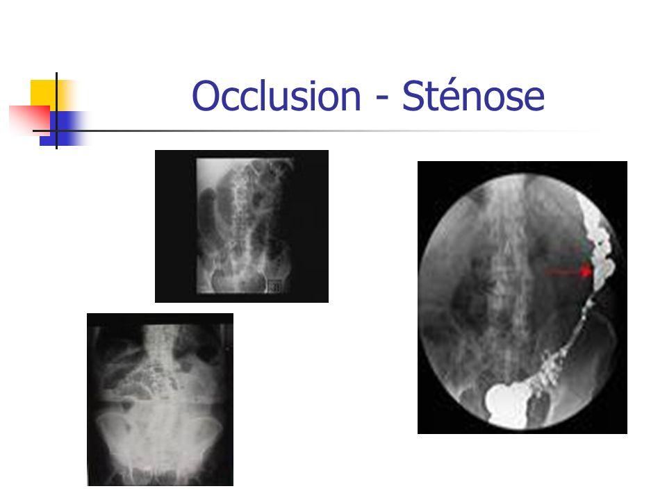 Occlusion - Sténose