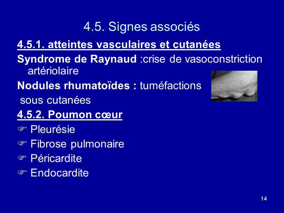 14 4.5. Signes associés 4.5.1. atteintes vasculaires et cutanées Syndrome de Raynaud :crise de vasoconstriction artériolaire Nodules rhumatoïdes : tum