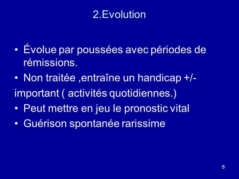 5 2.Evolution Évolue par poussées avec périodes de rémissions. Non traitée,entraîne un handicap +/- important ( activités quotidiennes.) Peut mettre e