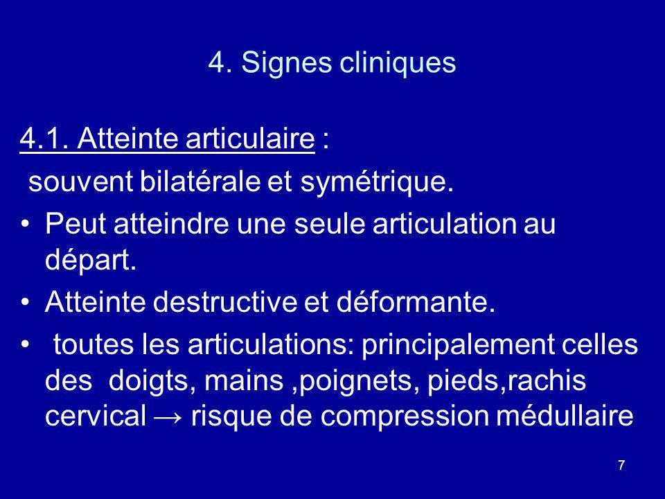7 4. Signes cliniques 4.1. Atteinte articulaire : souvent bilatérale et symétrique. Peut atteindre une seule articulation au départ. Atteinte destruct