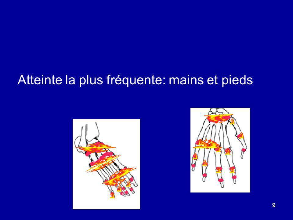 9 Atteinte la plus fréquente: mains et pieds