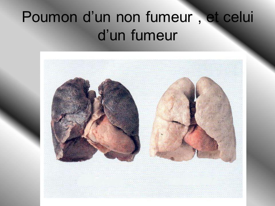 Pourquoi ne faut-il pas fumer ? On ne doit pas fumer car on risque d'avoir des maladies graves (cancer de la gorge, des poumons et maladie du cœur et