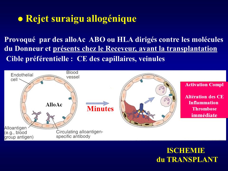 Rejet suraigu allogénique Provoqué par des alloAc ABO ou HLA dirigés contre les molécules du Donneur et présents chez le Receveur, avant la transplant