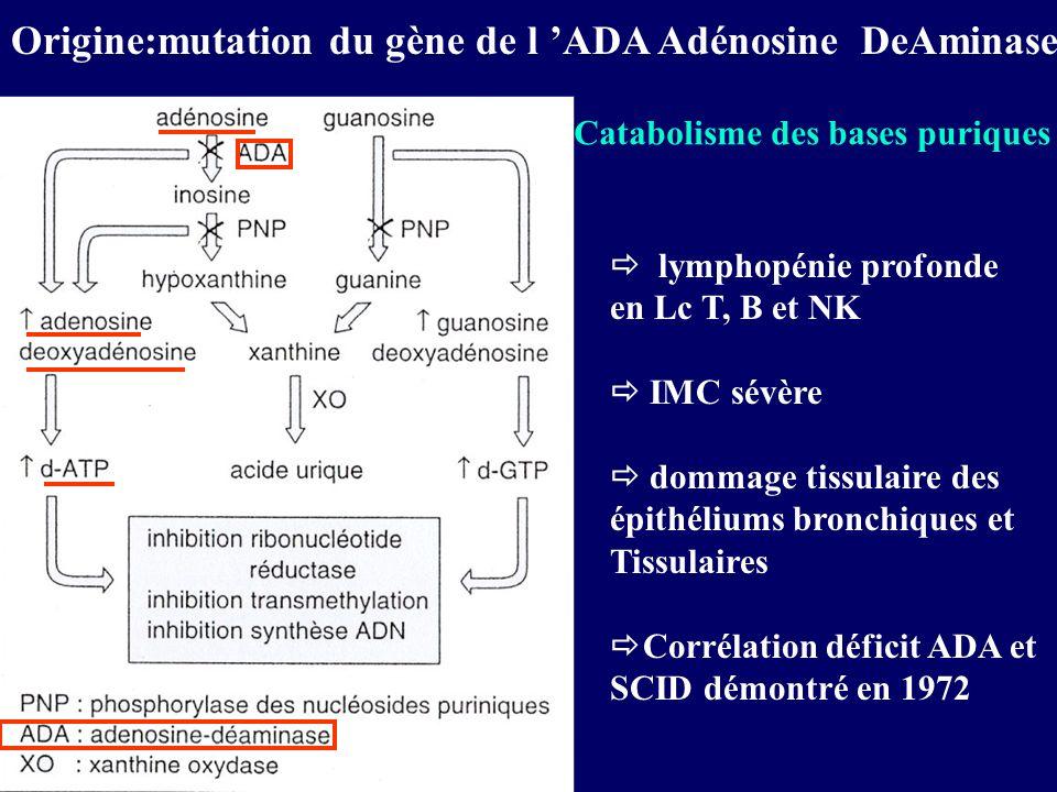 Origine:mutation du gène de l ADA Adénosine DeAminase lymphopénie profonde en Lc T, B et NK IMC sévère dommage tissulaire des épithéliums bronchiques et Tissulaires Corrélation déficit ADA et SCID démontré en 1972 Catabolisme des bases puriques