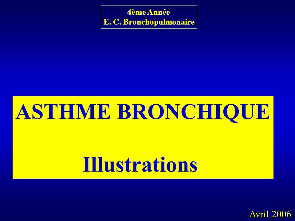 ASTHME BRONCHIQUE Illustrations 4ème Année E. C. Bronchopulmonaire Avril 2006