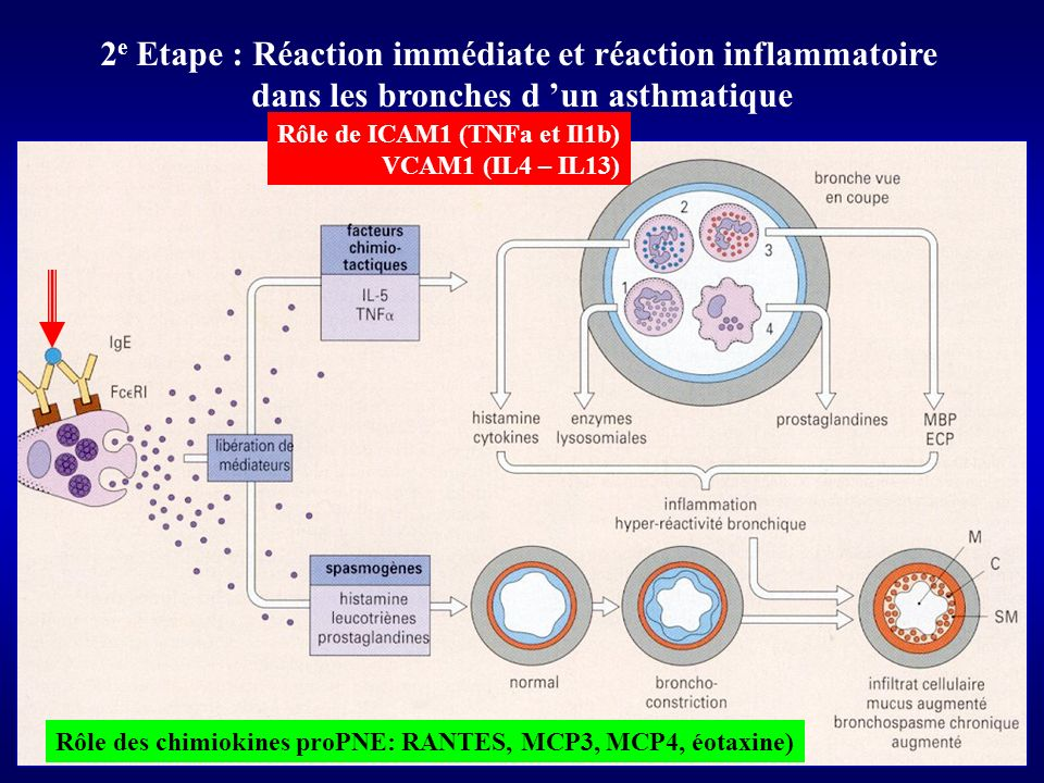 2 e Etape : Réaction immédiate et réaction inflammatoire dans les bronches d un asthmatique Rôle de ICAM1 (TNFa et Il1b) VCAM1 (IL4 – IL13) Rôle des chimiokines proPNE: RANTES, MCP3, MCP4, éotaxine)