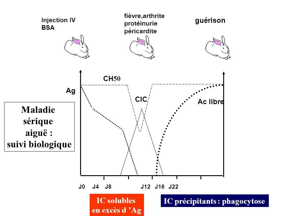 J0 J4 J8 J12 J16 J22 Ag CH 50 CIC Ac libre Injection IV BSA fièvre,arthrite protéinurie péricardite guérison IC solubles en excès d Ag IC précipitants : phagocytose Maladie sérique aiguë : suivi biologique