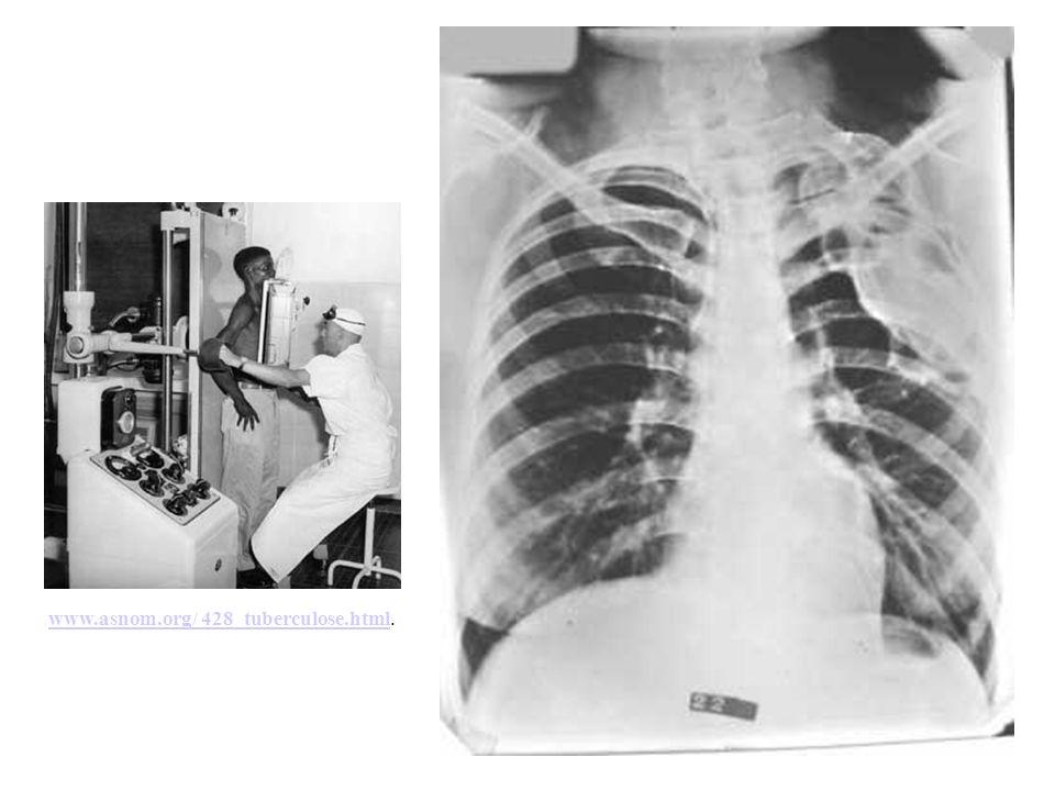 www.asnom.org/ 428_tuberculose.htmlwww.asnom.org/ 428_tuberculose.html.