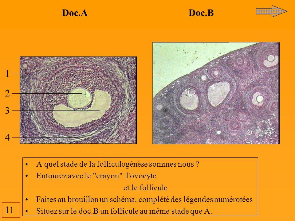 11 Doc.A Doc.B 1 2 3 4 A quel stade de la folliculogénèse sommes nous ? Entourez avec le