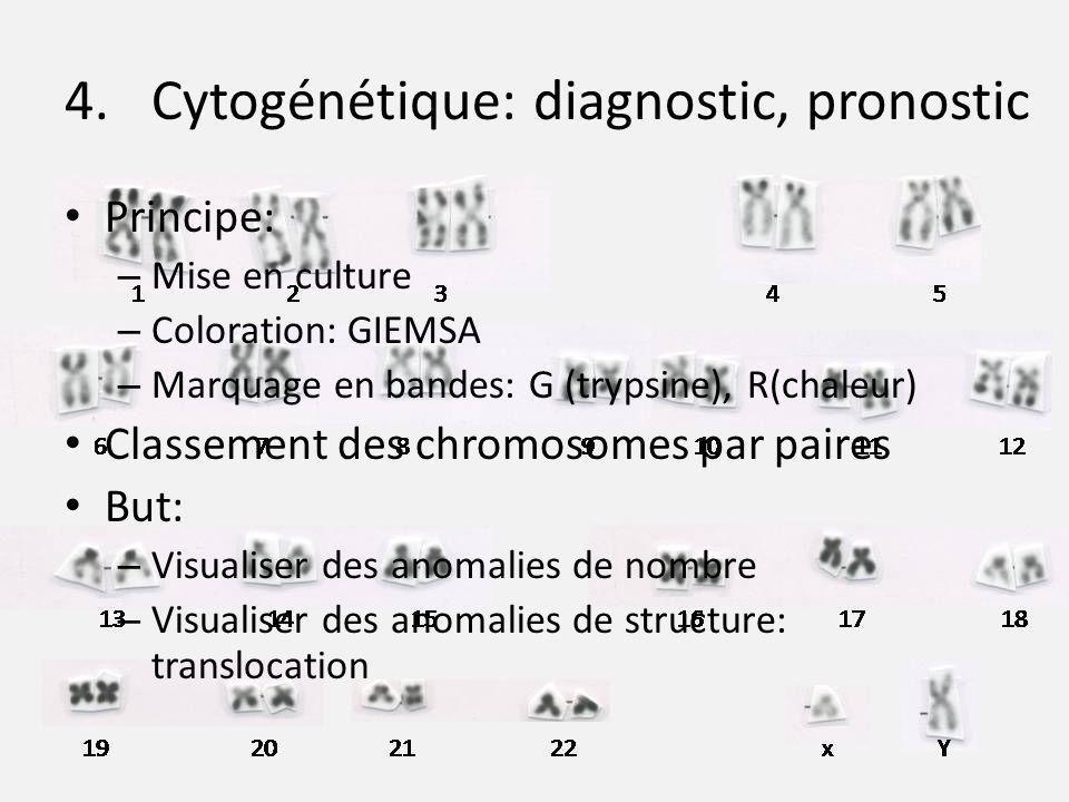 4.Cytogénétique: diagnostic, pronostic Principe: – Mise en culture – Coloration: GIEMSA – Marquage en bandes: G (trypsine), R(chaleur) Classement des