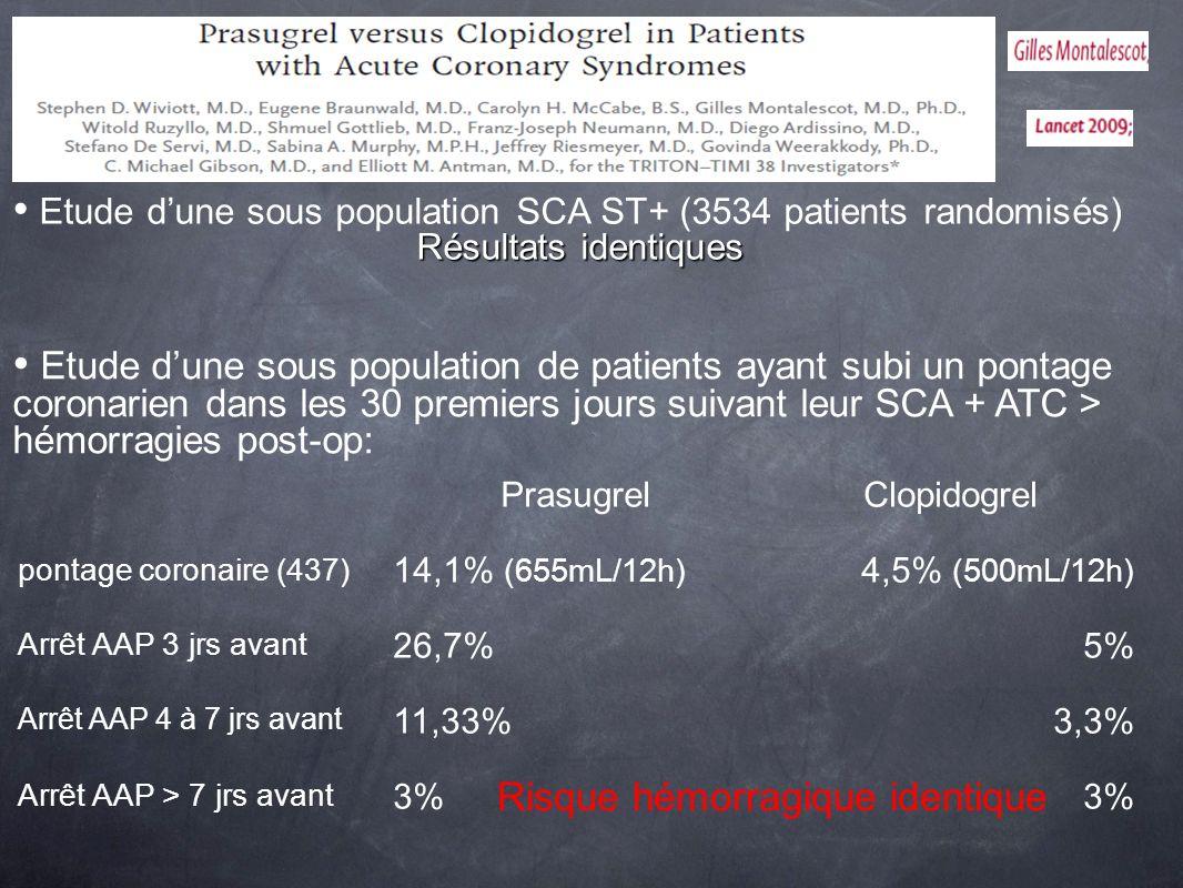 Etude dune sous population SCA ST+ (3534 patients randomisés) Résultats identiques Etude dune sous population de patients ayant subi un pontage corona