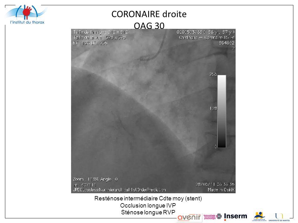 CORONAIRE droite OAG 30 Resténose intermédiaire Cdte moy (stent) Occlusion longue IVP Sténose longue RVP