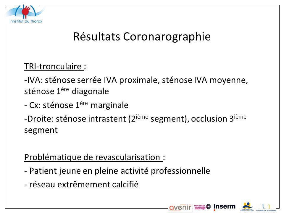 Résultats Coronarographie TRI-tronculaire : -IVA: sténose serrée IVA proximale, sténose IVA moyenne, sténose 1 ère diagonale - Cx: sténose 1 ère margi