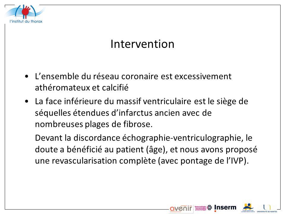Intervention Lensemble du réseau coronaire est excessivement athéromateux et calcifié La face inférieure du massif ventriculaire est le siège de séquelles étendues dinfarctus ancien avec de nombreuses plages de fibrose.
