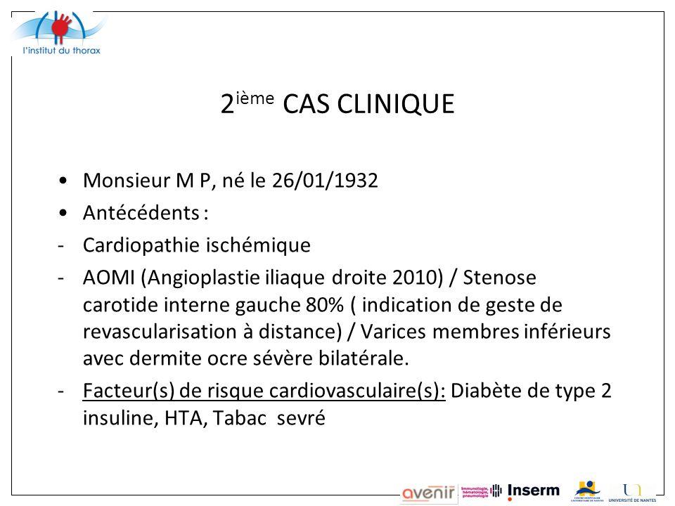 2 ième CAS CLINIQUE Monsieur M P, né le 26/01/1932 Antécédents : -Cardiopathie ischémique -AOMI (Angioplastie iliaque droite 2010) / Stenose carotide interne gauche 80% ( indication de geste de revascularisation à distance) / Varices membres inférieurs avec dermite ocre sévère bilatérale.