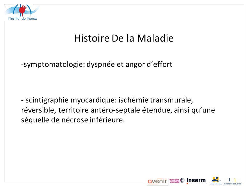 Circonflexe Sténose proximale <50% de la première marginale.
