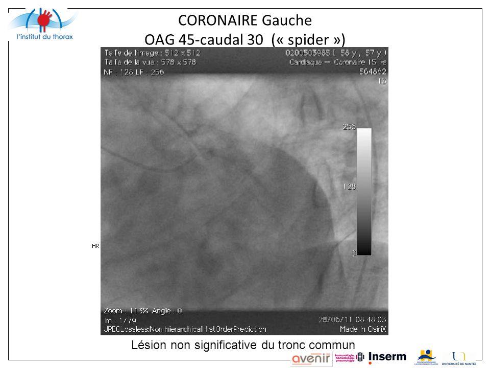 CORONAIRE Gauche OAG 45-caudal 30 (« spider ») Lésion non significative du tronc commun