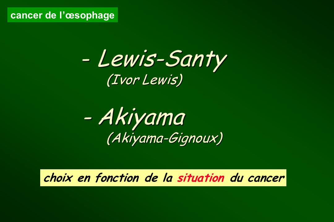 cancer de lœsophage - Lewis-Santy (Ivor Lewis) - Akiyama (Akiyama-Gignoux) choix en fonction de la situation du cancer