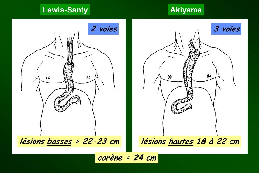 Lewis-SantyAkiyama 2 voies3 voies lésions basses > 22-23 cmlésions hautes 18 à 22 cm carène = 24 cm