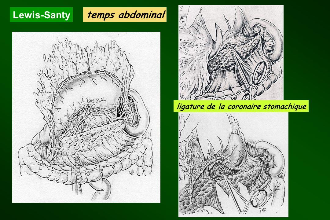 Lewis-Santy temps abdominal ligature de la coronaire stomachique