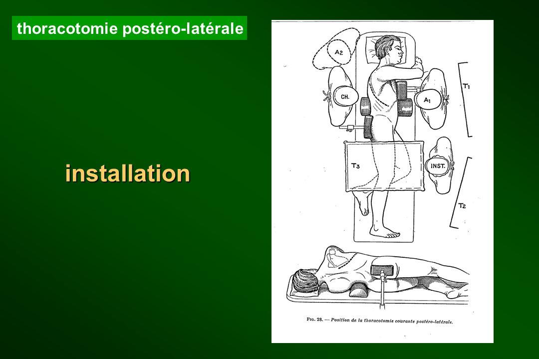 installation thoracotomie postéro-latérale