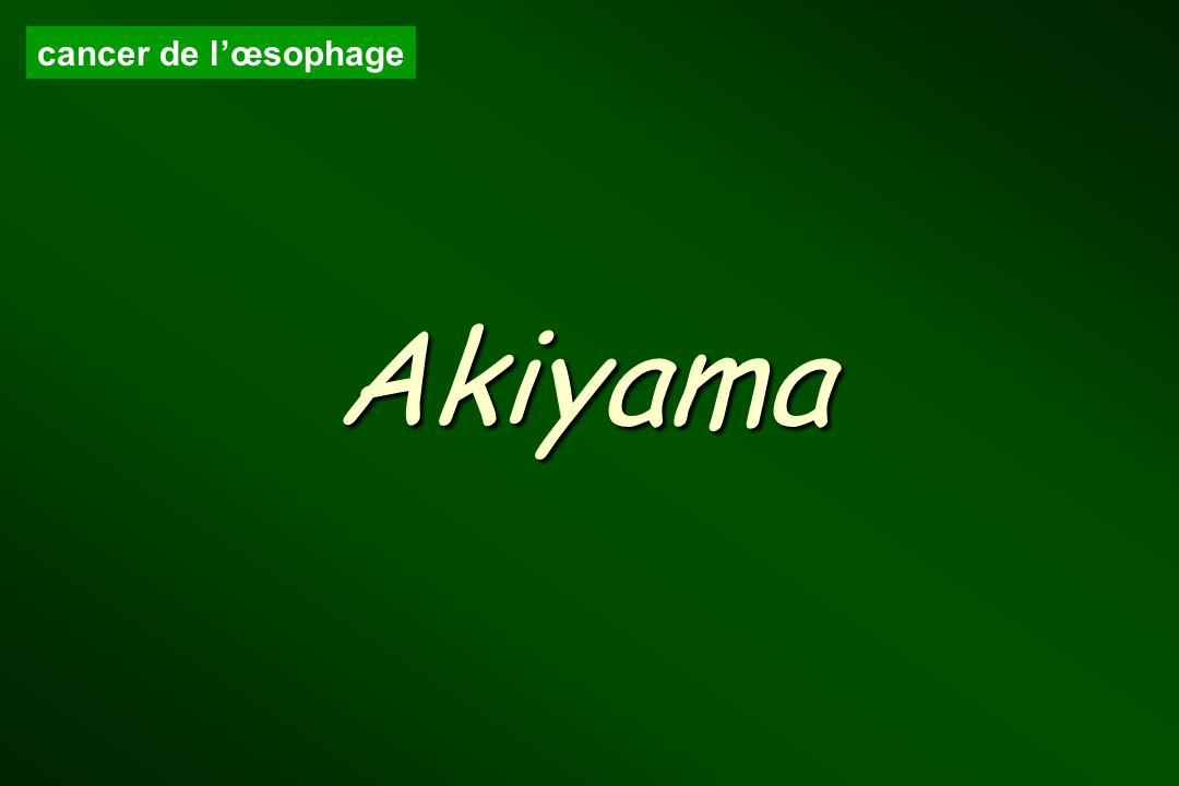 cancer de lœsophage Akiyama