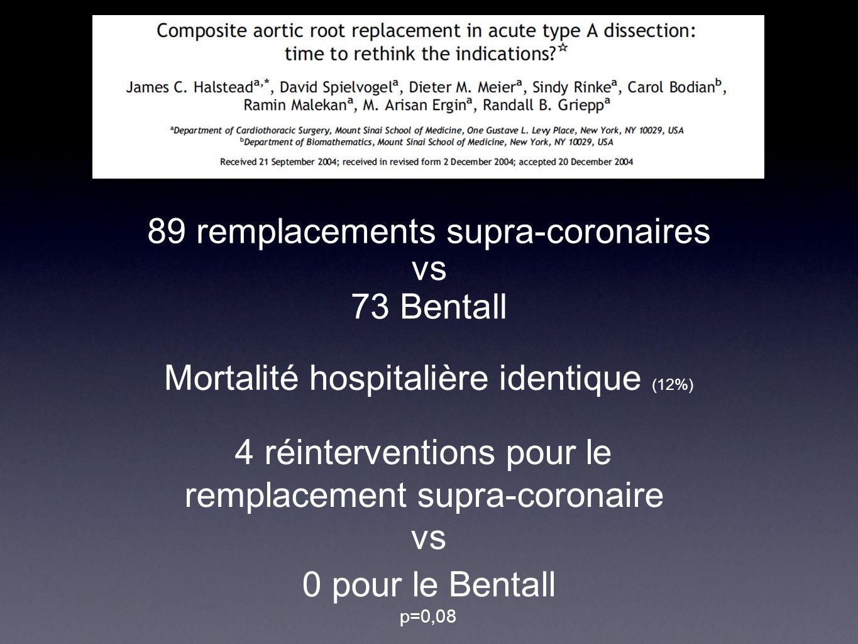 78 Remplacements Ao Ascendante seule 13 patients ( 16% ) 10% de DC