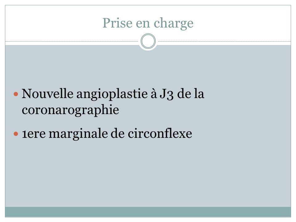 Prise en charge Nouvelle angioplastie à J3 de la coronarographie 1ere marginale de circonflexe