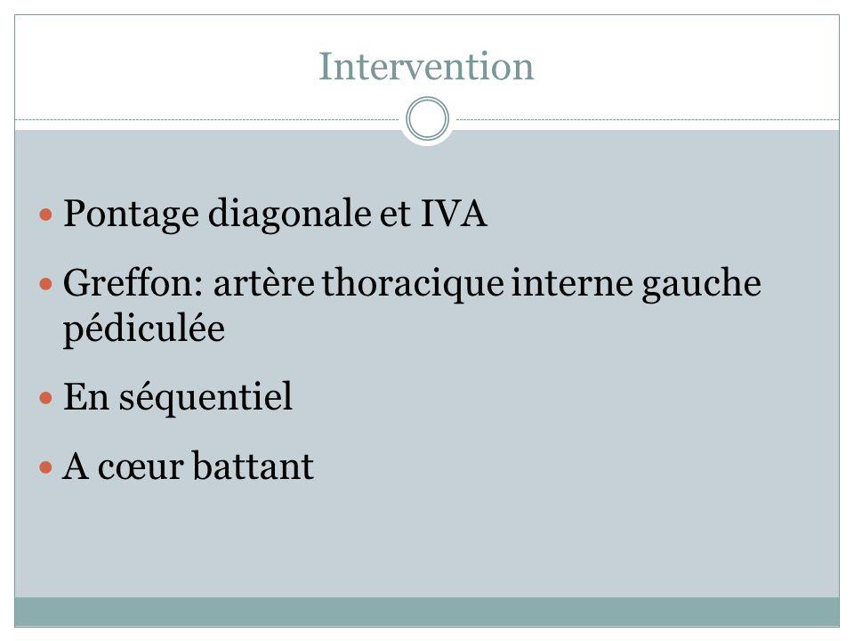 Intervention Pontage diagonale et IVA Greffon: artère thoracique interne gauche pédiculée En séquentiel A cœur battant