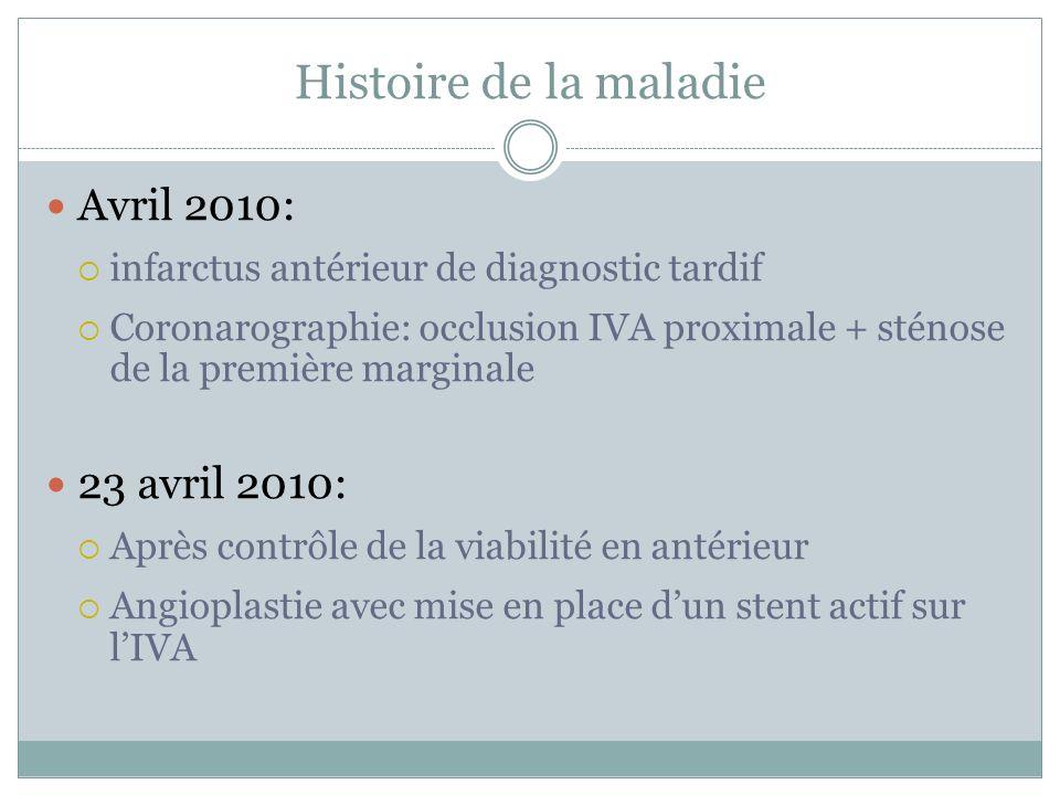 Histoire de la maladie Avril 2010: infarctus antérieur de diagnostic tardif Coronarographie: occlusion IVA proximale + sténose de la première marginal