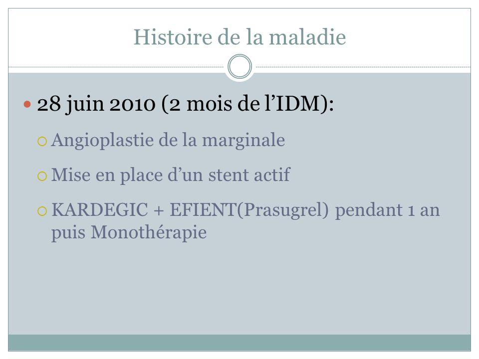 Histoire de la maladie 28 juin 2010 (2 mois de lIDM): Angioplastie de la marginale Mise en place dun stent actif KARDEGIC + EFIENT(Prasugrel) pendant