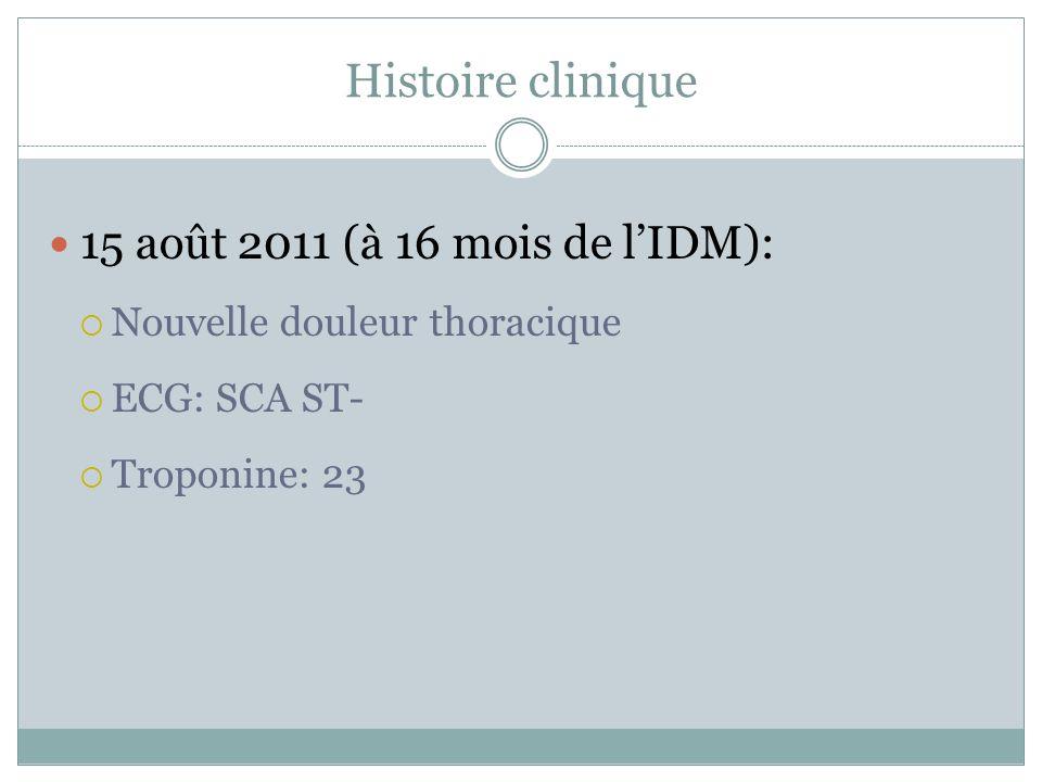 Histoire clinique 15 août 2011 (à 16 mois de lIDM): Nouvelle douleur thoracique ECG: SCA ST- Troponine: 23
