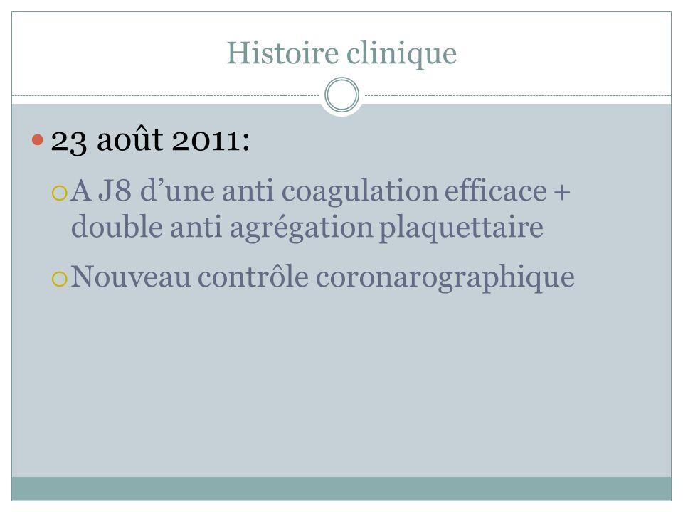 Histoire clinique 23 août 2011: A J8 dune anti coagulation efficace + double anti agrégation plaquettaire Nouveau contrôle coronarographique