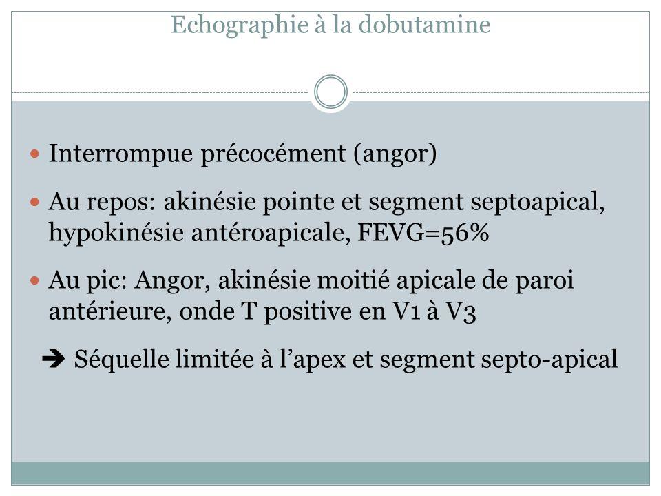 Echographie à la dobutamine Interrompue précocément (angor) Au repos: akinésie pointe et segment septoapical, hypokinésie antéroapicale, FEVG=56% Au p