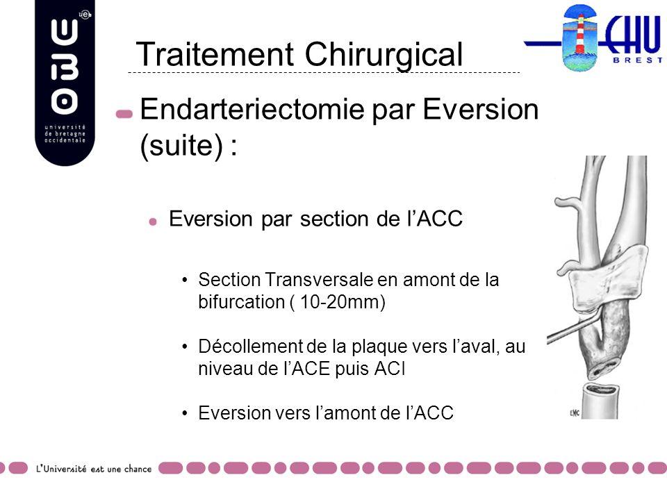 Endarteriectomie par Eversion (suite) : Eversion par section de lACC Section Transversale en amont de la bifurcation ( 10-20mm) Décollement de la plaq