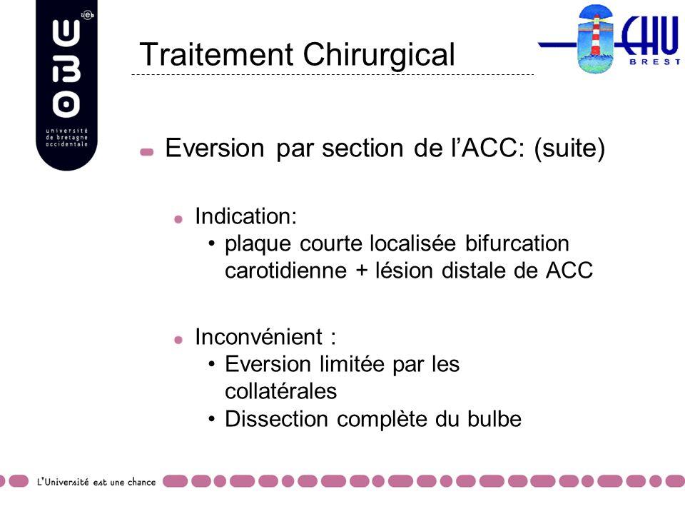 Traitement Chirurgical Eversion par section de lACC: (suite) Indication: plaque courte localisée bifurcation carotidienne + lésion distale de ACC Inco