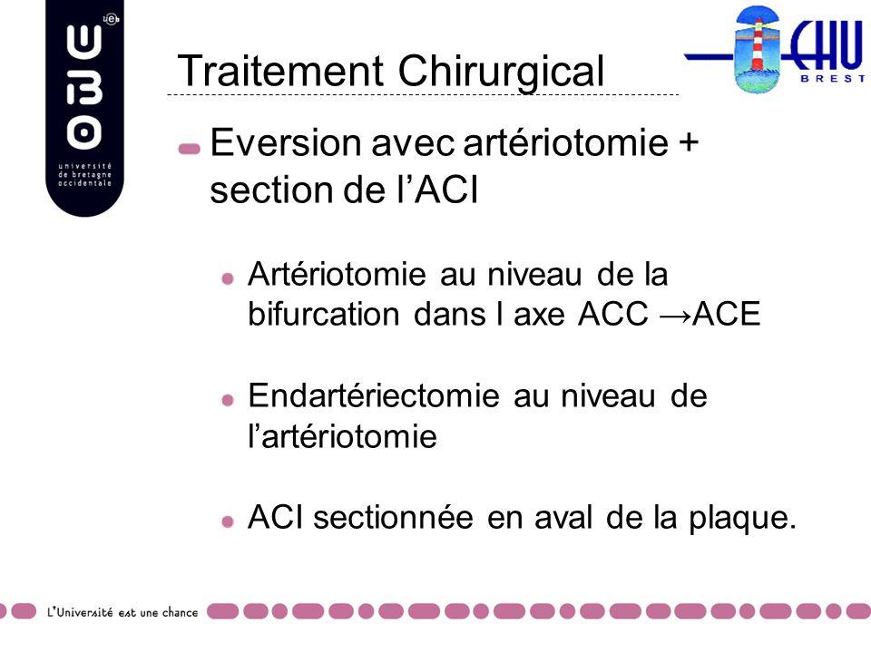 Eversion avec artériotomie + section de lACI Artériotomie au niveau de la bifurcation dans l axe ACC ACE Endartériectomie au niveau de lartériotomie A