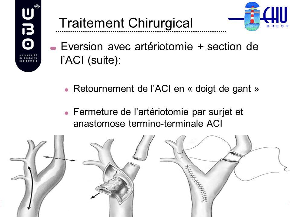 Eversion avec artériotomie + section de lACI (suite): Retournement de lACI en « doigt de gant » Fermeture de lartériotomie par surjet et anastomose te