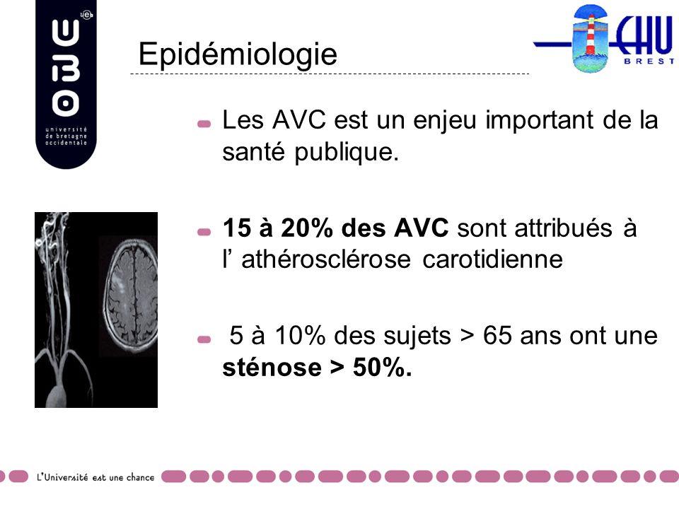 Epidémiologie Les AVC est un enjeu important de la santé publique. 15 à 20% des AVC sont attribués à l athérosclérose carotidienne 5 à 10% des sujets