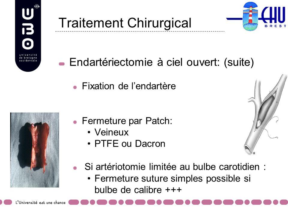 Traitement Chirurgical Endartériectomie à ciel ouvert: (suite) Fixation de lendartère Fermeture par Patch: Veineux PTFE ou Dacron Si artériotomie limi