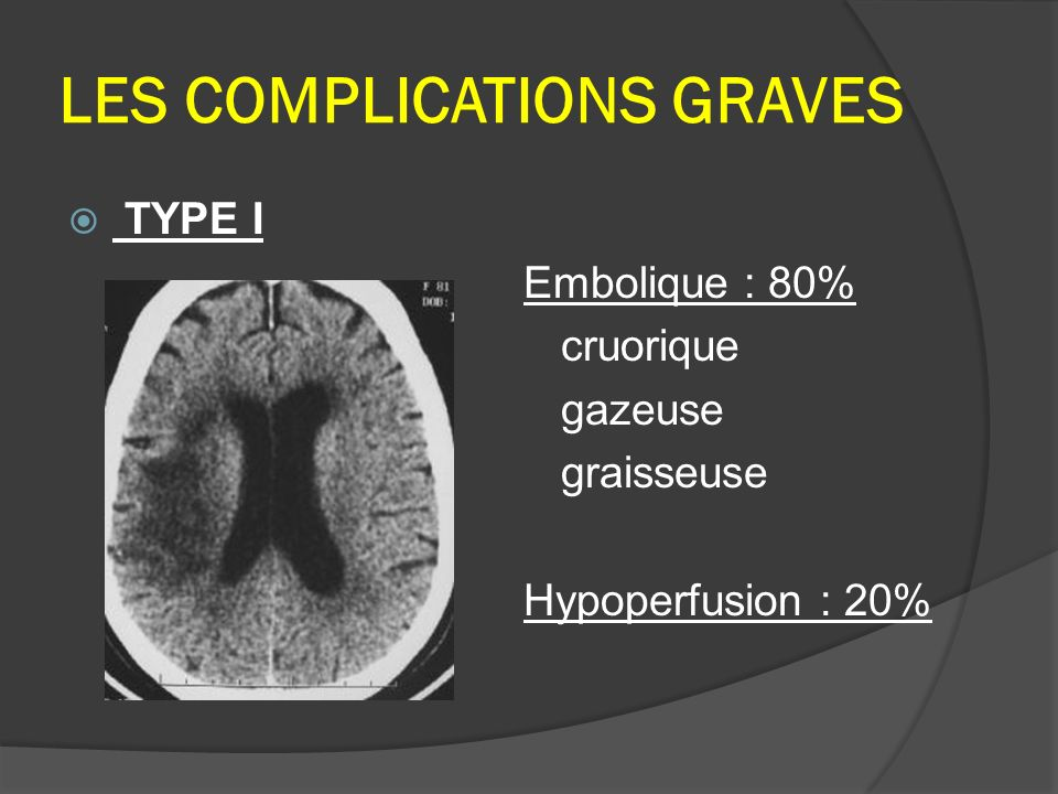 LES COMPLICATIONS GRAVES TYPE I Embolique : 80% cruorique gazeuse graisseuse Hypoperfusion : 20%