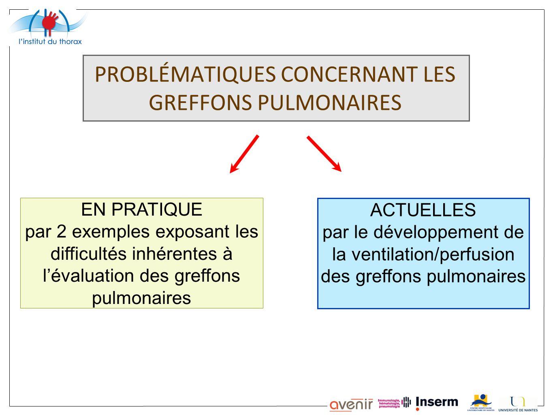 PROBLÉMATIQUES CONCERNANT LES GREFFONS PULMONAIRES EN PRATIQUE par 2 exemples exposant les difficultés inhérentes à lévaluation des greffons pulmonair