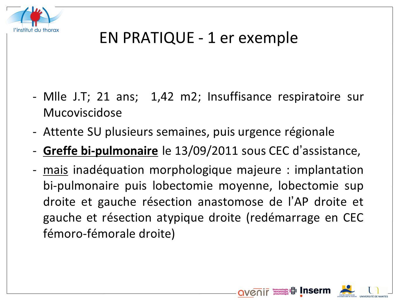 EN PRATIQUE - 1 er exemple -Mlle J.T; 21 ans; 1,42 m2; Insuffisance respiratoire sur Mucoviscidose -Attente SU plusieurs semaines, puis urgence région
