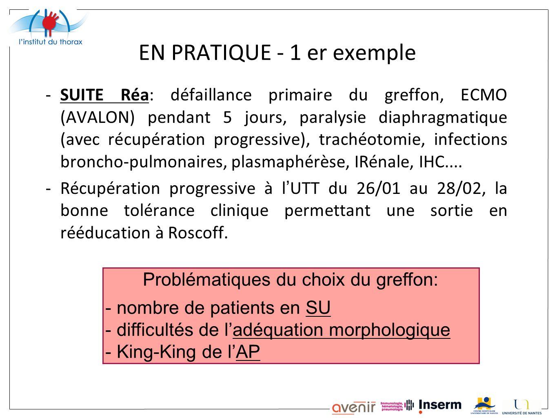 EN PRATIQUE - 1 er exemple -SUITE Réa: défaillance primaire du greffon, ECMO (AVALON) pendant 5 jours, paralysie diaphragmatique (avec récupération pr
