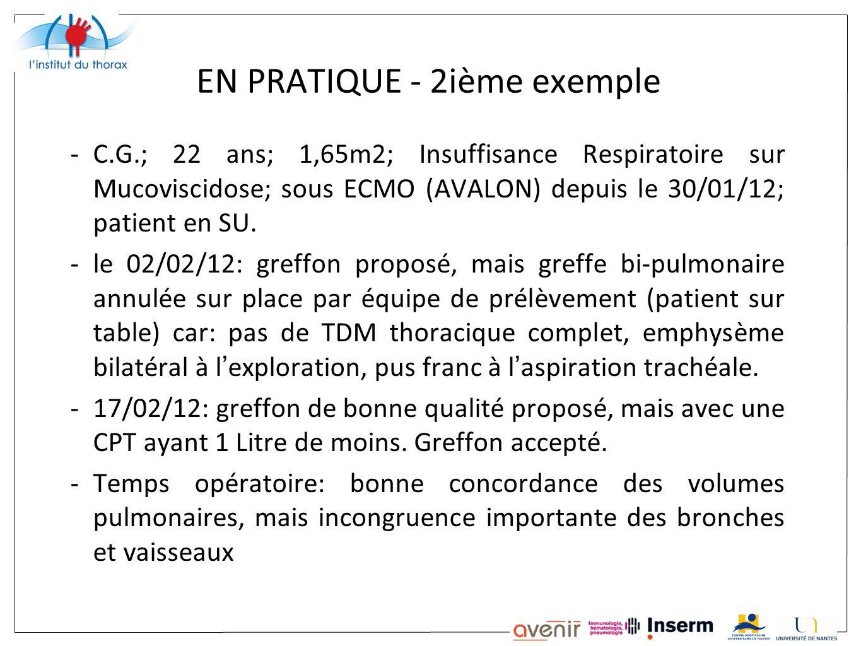 EN PRATIQUE - 2ième exemple -C.G.; 22 ans; 1,65m2; Insuffisance Respiratoire sur Mucoviscidose; sous ECMO (AVALON) depuis le 30/01/12; patient en SU.