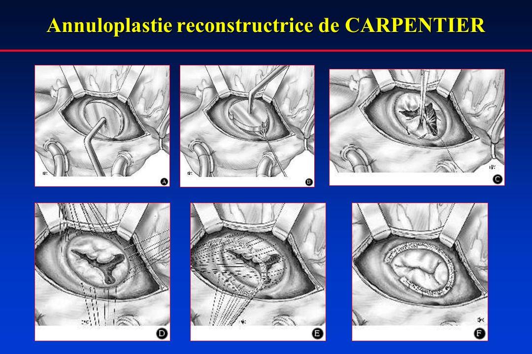 Annuloplastie reconstructrice de CARPENTIER
