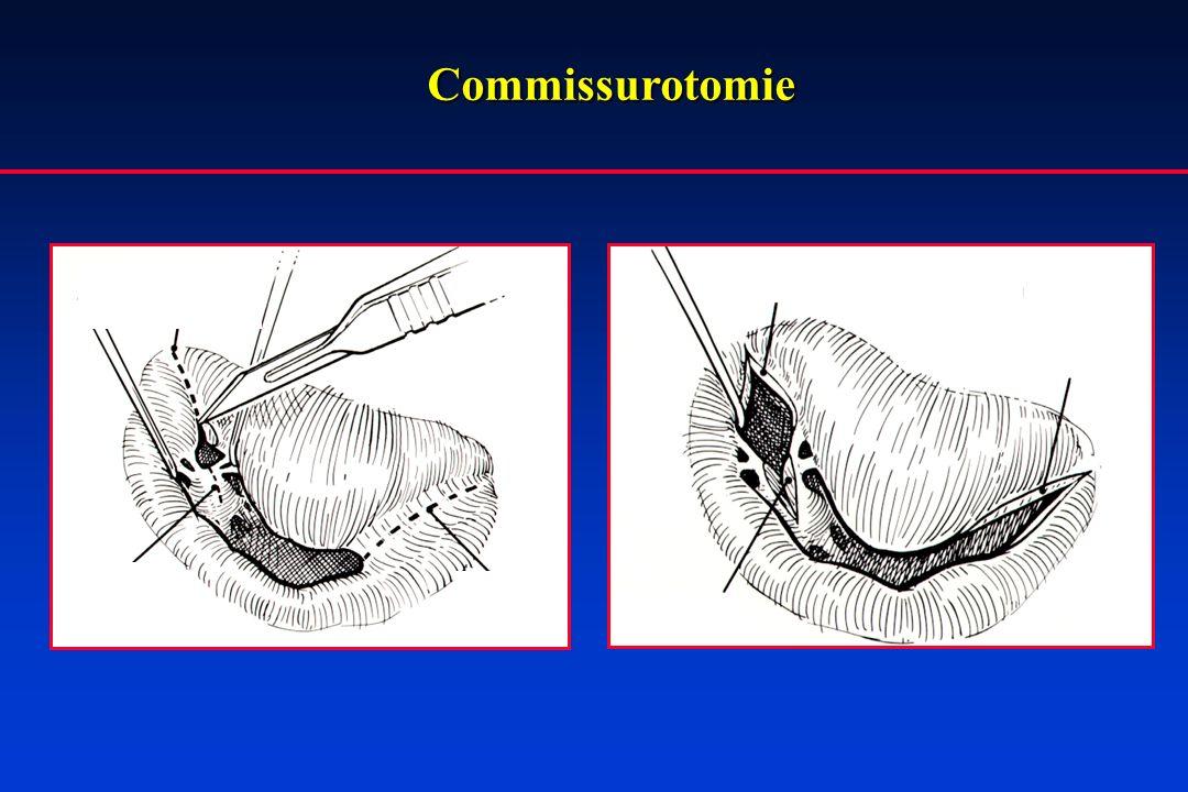 Commissurotomie